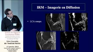 Docteur Cyrille Delin - Etude de la cicatrisation des ruptures complètes du LCA par IRM diffusion