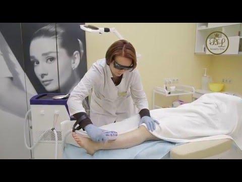Лазерная Эпиляция | Мой Опыт