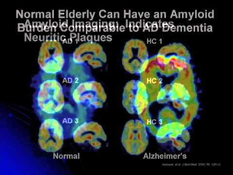 Redefining Alzheimer's Disease: New Diagnostic Criteria