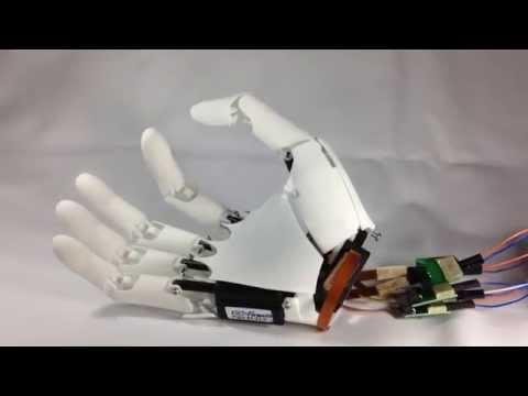 """0 - """"Druck mir einen neuen Fuß in 48 Stunden"""" 3D-Druck in der Medizin #1: Prothesen"""