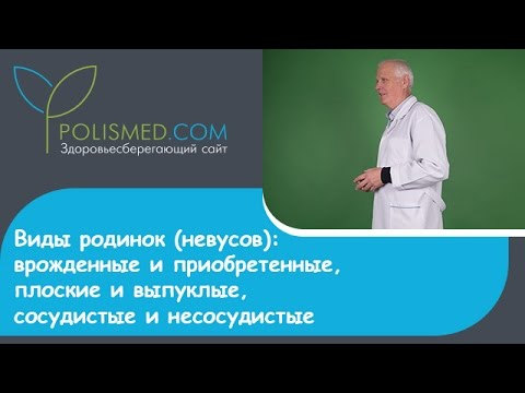 Что такое невус: причины, симптомы и обзор лечения