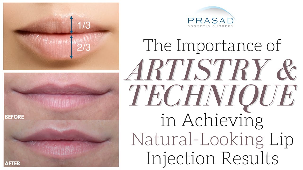 How to Achieve Natural-Looking and Attractive Lips with the