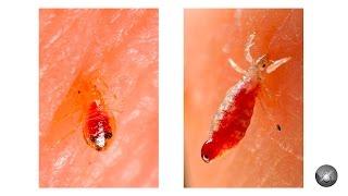 видео Фото, как выглядят лобковые вши и их укусы... Как передаются вши