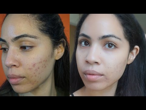 hqdefault - Is Smoked Salmon Good For Acne
