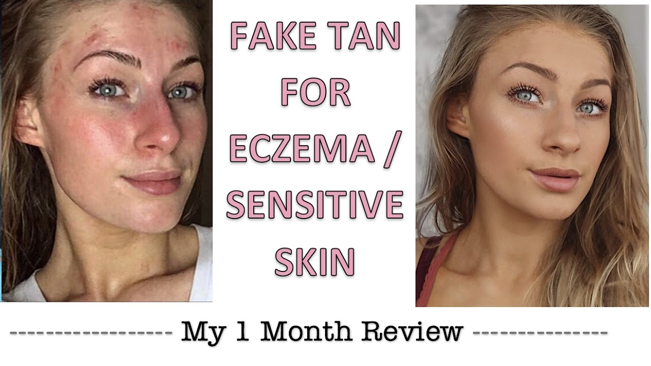 Fake Tan For Eczema Sensitive Skin Review Eczema Psoriasis Sensitive Skin Youtube