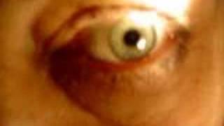 unstable pupil reflex