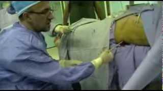 خارج کردن سنگ کلیه به روش خوابیده به پشت توسط دکتر حسین کرمی