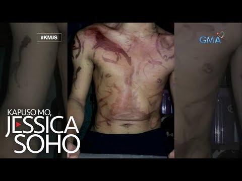 Kapuso Mo, Jessica Soho: Binata, nadisgrasya sa henna tattoo!