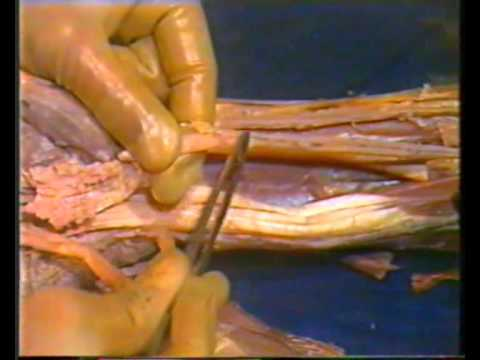 Human Anatomy - Upper Limb - YouTube