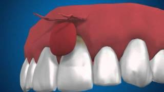 пластика десны(пластика десны при оголении корня зуба., 2012-01-25T15:16:34.000Z)