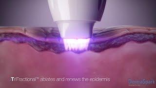 Pollogen LEGEND TriFractional Technology