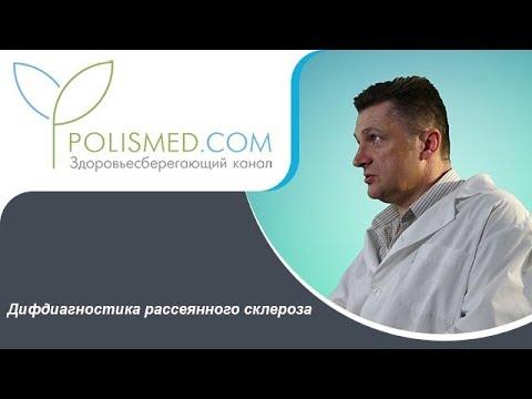 Дифдиагностика рассеянного склероза с энцефаломиелитом, полинейропатией, болезнью Альцгеймера