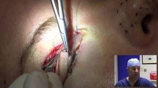 Eyelid Surgery in 10 Minutes