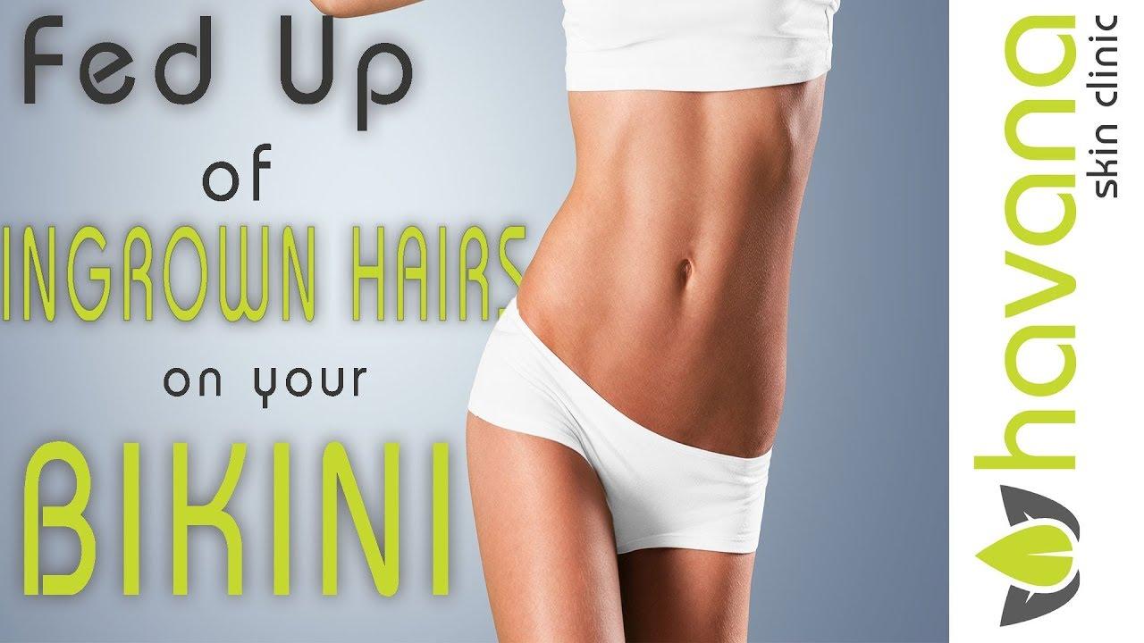 Ingrown Hairs On Your Brazilian