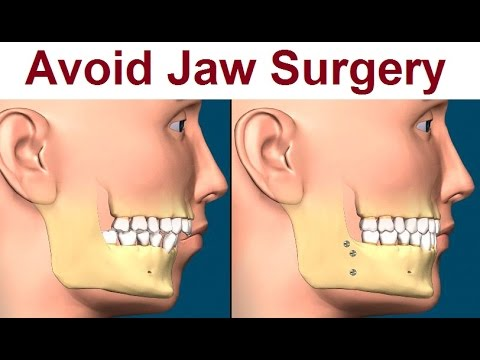 Bringing the maxilla up and forwards without surgery?