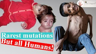 5 Real People who Baffled Scientists!! Rarest Mutations! ~Body Bizarre