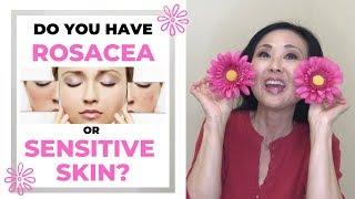 Do you have Rosacea vs Sensitive Skin?  (Rosacea Treatments) Signs of Rosacea