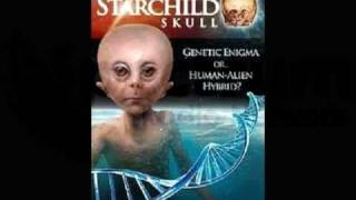 PT 6/6 Lloyd Pye - Human Origins & Starchild Skull Update - Spectrum