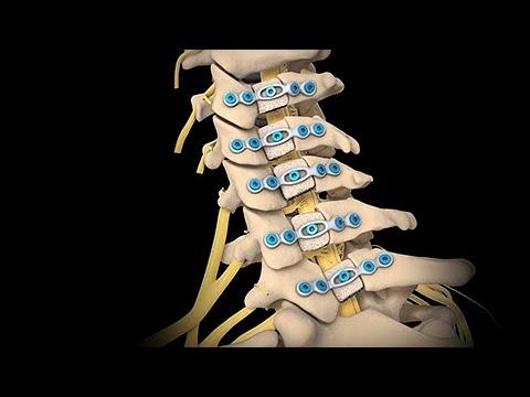 Neck Surgery - Cervical Laminoplasty