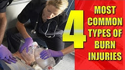 Atlanta Personal Injury Lawyer: 4 most common types of burn injuries