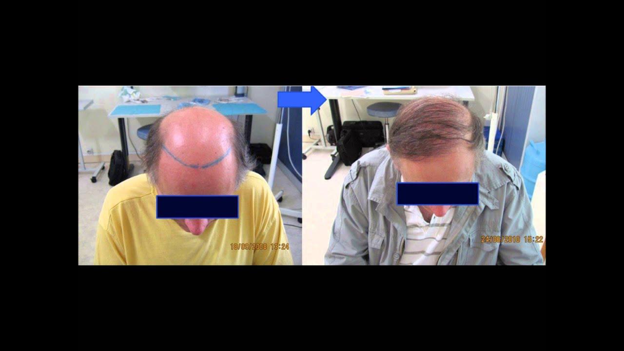dr amar greffe de cheveux implant capillaire fue calvitie docteur amar alop cie youtube. Black Bedroom Furniture Sets. Home Design Ideas