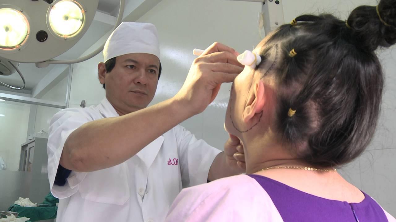 Bs.Long khám và phẫu thuật căng da mặt cho cô Lệ Thu – TMV BS.LONG