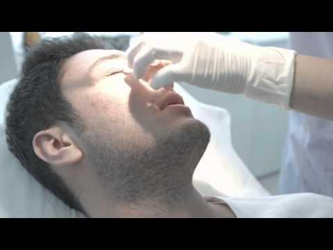 Tip Plasti (Burun Ucu Estetiği) Ameliyatı Nedir? (Op.Dr Tuba Erdoğan)