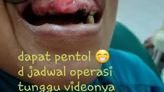 Pyogenic granuloma, is a relatively common tumor like growth occurring in the oral mucosa. This lesi.