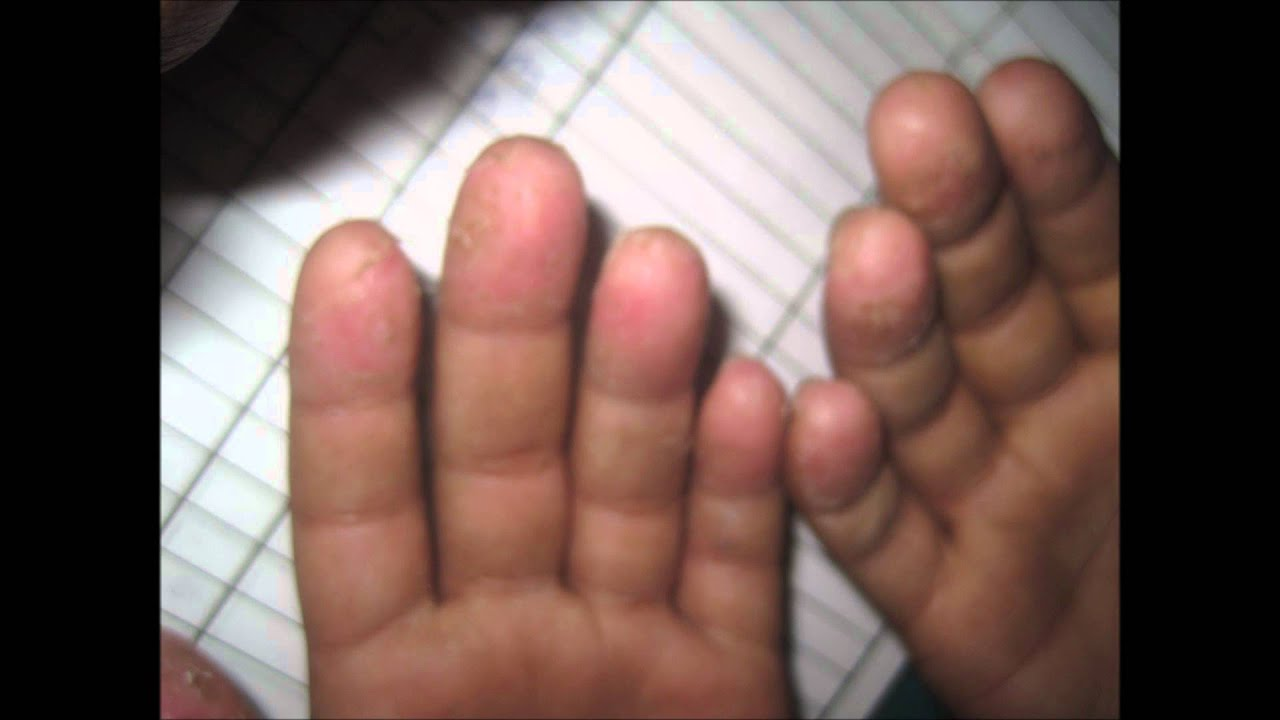 Peeling Of Skin At Finger Tips - YouTube