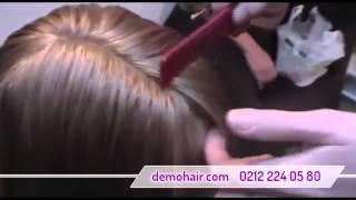 Bayan protez saç fiyatları