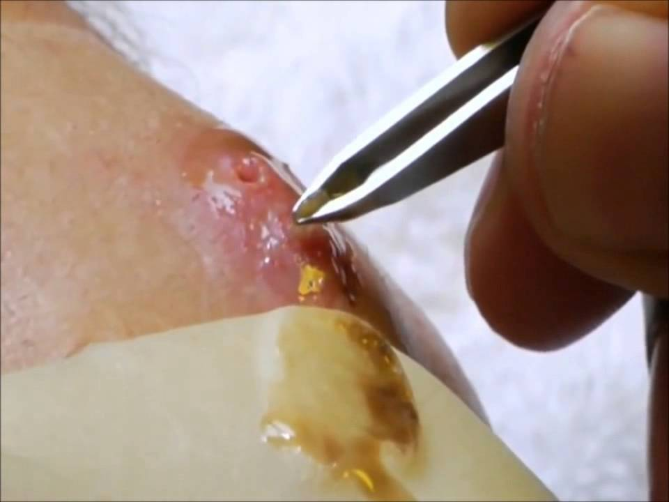 Botfly removal