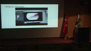 Ayak Bileği Artroskopisinde Portaller Ahmet Kulduk