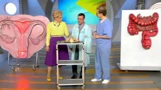 Причины возникновения остроконечных кондилом(Подробнее на сайте - http://vip-dermatolog.ru/prichiny-ostrokonechnyx-kondilom/, 2014-02-17T07:16:06.000Z)