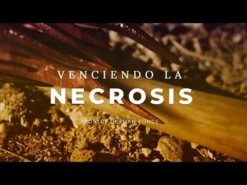 Apóstol German Ponce - Venciendo La Necrosis - domingo am 04 de marzo 2018