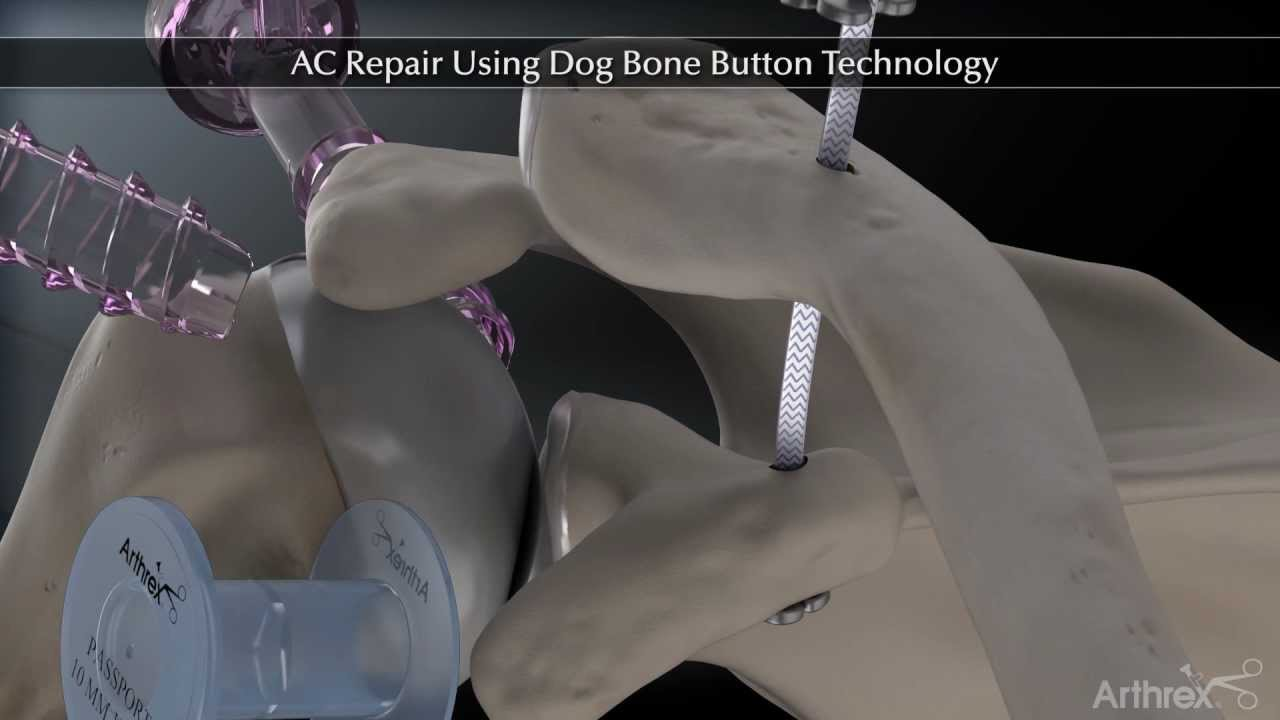 ACJ Repair with Dogbone System - YouTube