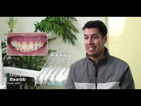 Overbite case treated with Zirconia Crowns made his smile return [by Dentakay in Turkey]