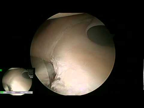Full Labrum Tear Surgery Video
