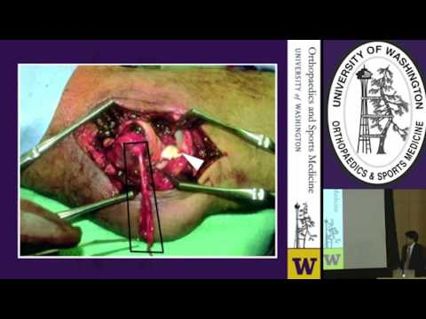 Terrible Triad Injuries and the Complex Elbow: Current Concepts - Grand Rounds - February 3, 2016