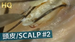 Repeat youtube video #2 Scalp Blackhead Removal Close up HQ200X