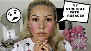 MY STRUGGLE WITH ROSACEA   MY NEW NORMAL.