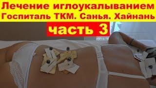 Медицинский массаж лечение иглоукалыванием Госпиталь ТКМ Санья Хайнань Китай