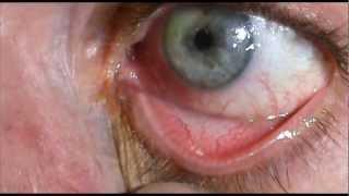 Applying Eye Ointment