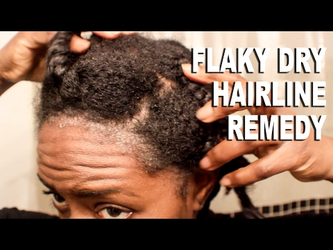 Natural Hair| Flaky & Dry Hairline Scalp Remedy|SCALP PSORIASIS??| BEAUTYCUTRIGHT