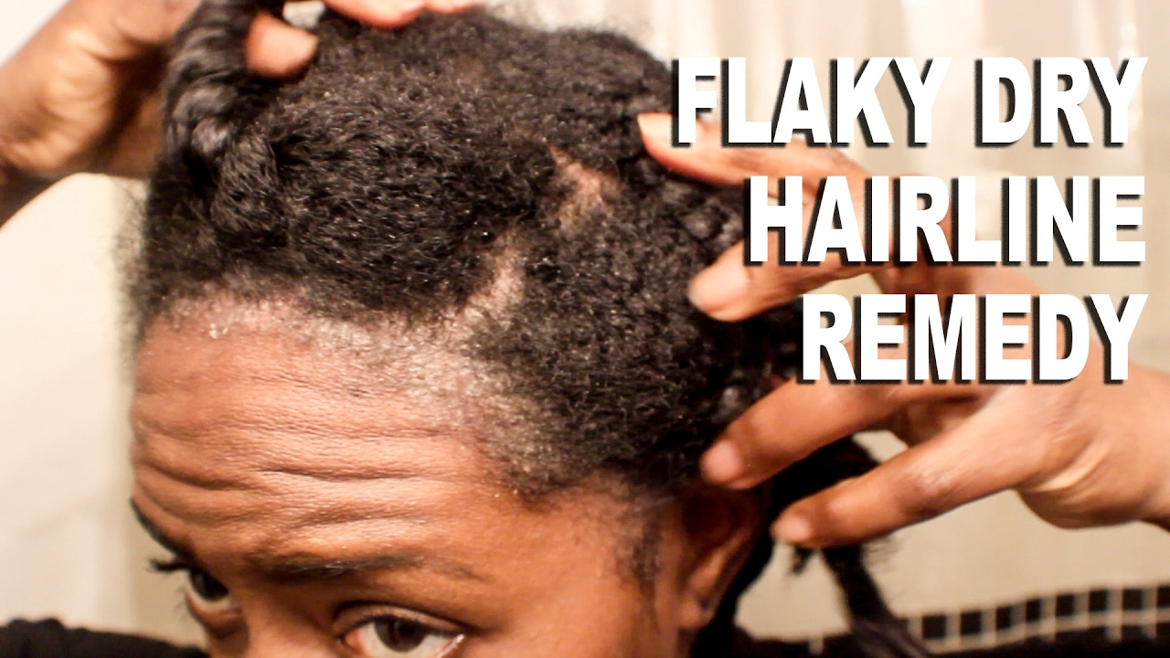 Natural Hair Flaky Dry Hairline Scalp Remedyscalp Psoriasis