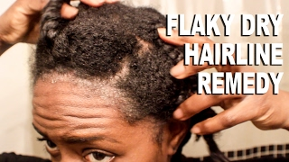 Natural Hair Flaky and Dry Hairline Scalp RemedySCALP PSOR AS S BEAUTYCUTR GHT