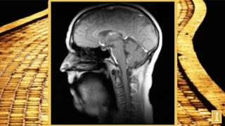 New Super-Fast MRI Technique: Singing