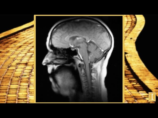 A screenshot from New Super-Fast MRI Technique: Singing 'If I Only Had a Brain'