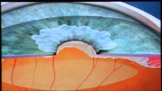 Fluxo do Aquoso - Visare Hospital de Olhos