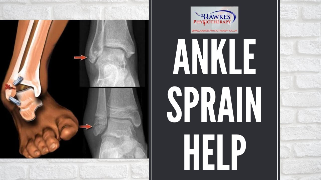Lateral Ankle Sprain Treatment Rehabilitation Exercises Video