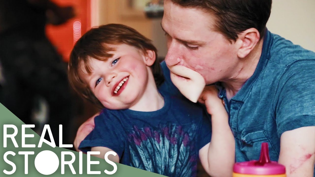 Loss of Limbs and Lips Leaves Son Unable to Kiss Dad - Real Stories